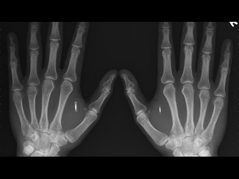 NEWS AND PROPHECY: MAN BECOMES HUMAN BITCOIN WALLET WITH IMPLANTED MICROCHIP