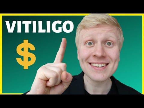 VITILIGO ORGANICS REVIEWS 2019: Learn 4 Steps to Make Money Online with Vitiligo Organics!